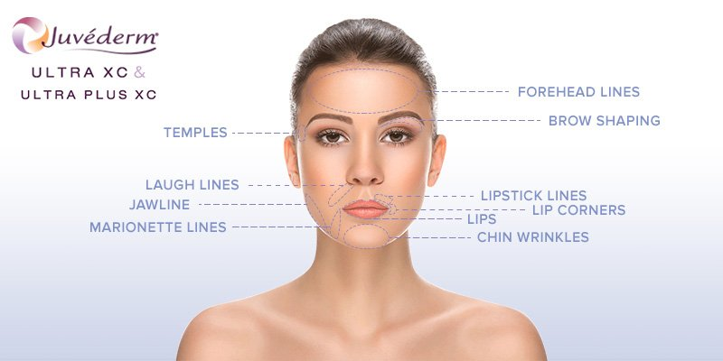 Dermal Fillers | Non-Surgical Methods from Signature